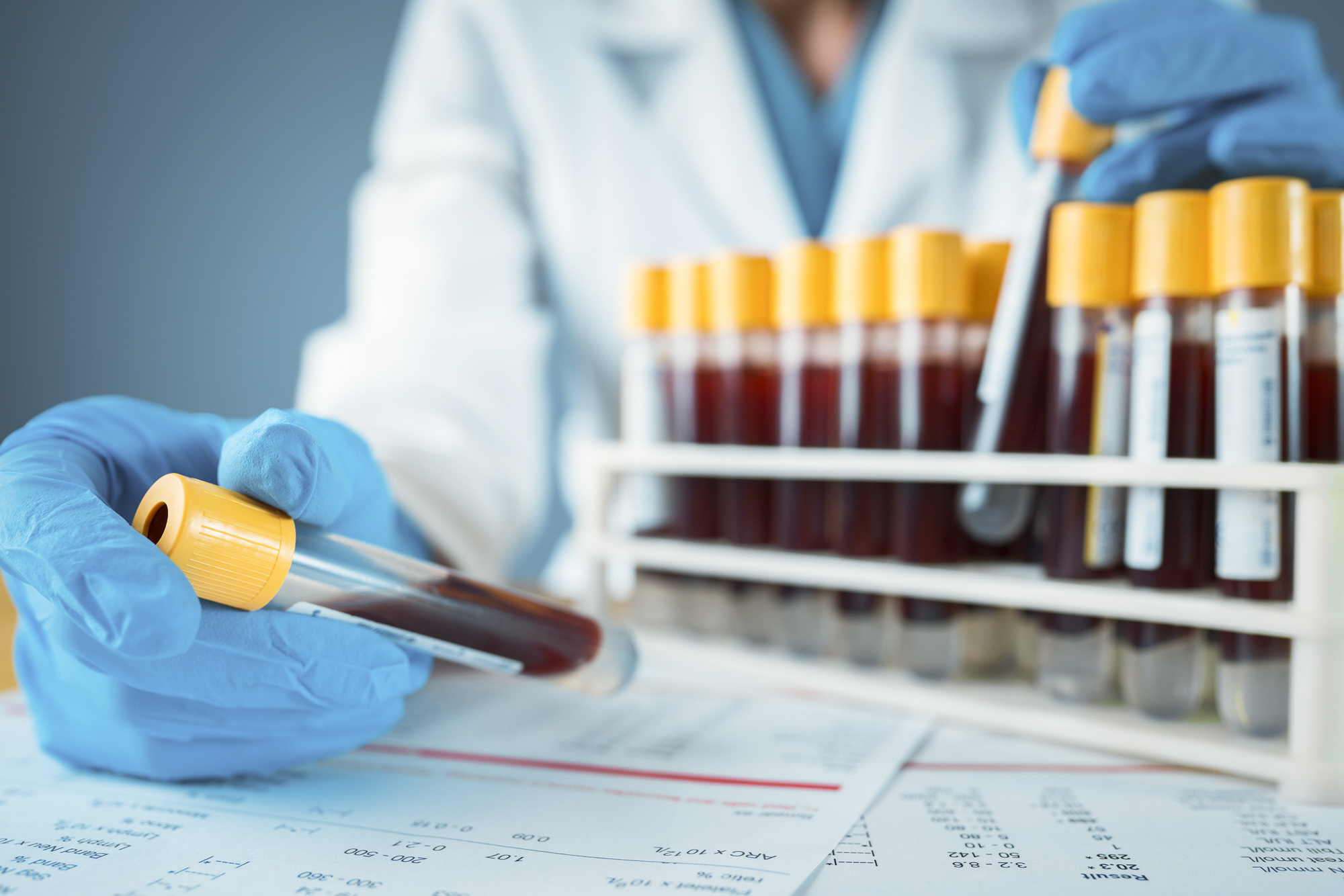 A blood test could be released soon that would tell us who has immunity to COVID-19. Image via iStock